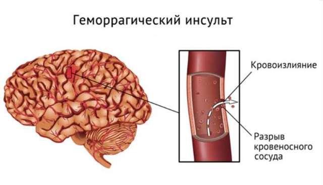 Геморрагический инсульт (кровоизлияние в мозг) головного мозга: диагностика, лечение, причины, симптомы и прогноз выздоровления
