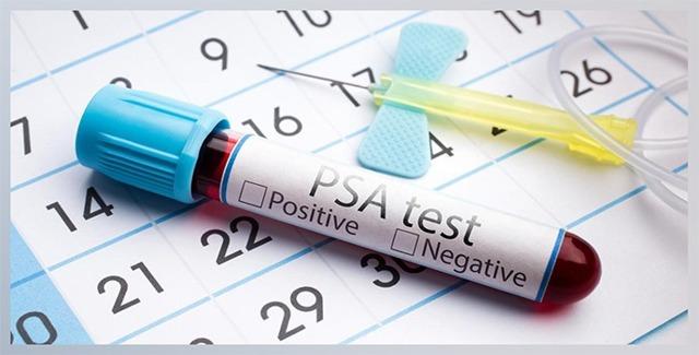 Анализ крови на ПСА: нормы, расшифровка анализа