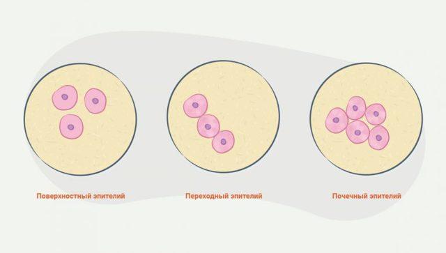 Эпителий плоский почечный, переходный в моче (норма у женщин)