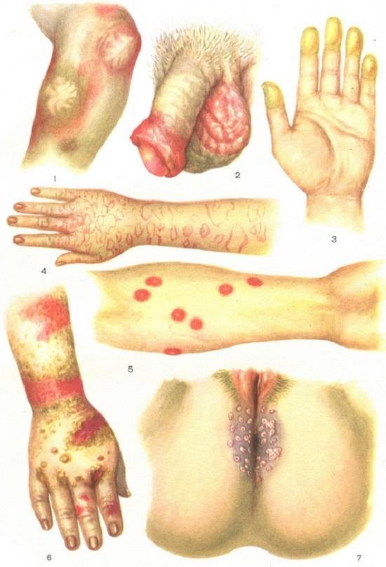 Токсидермия: первые проявления и причины заболевания