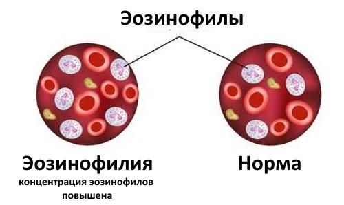Эозинофилия - что это? Причины, симптомы и лечение