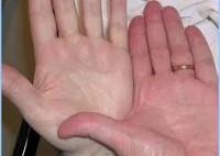 Постгеморрагическая анемия (острая, хроническая) - причины и основные симптомы