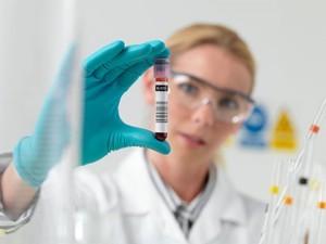 Анализ крови при лейкозе: о процедуре и расшифровке результатов