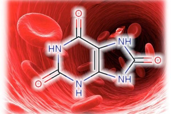 Как вывести мочевую кислоту из организма?