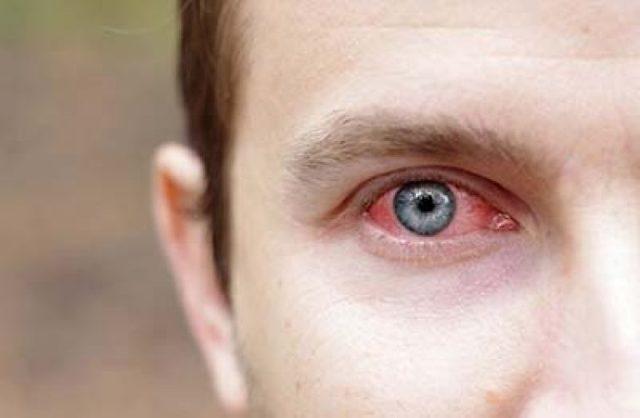 Внутриглазное давление у взрослого: нормы, причины, симптомы и лечение