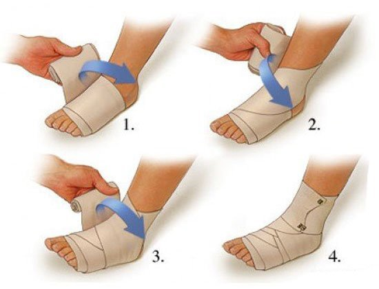 Лопаются кровеносные сосуды и капилляры на ногах, появляются синяки: причины и лечение