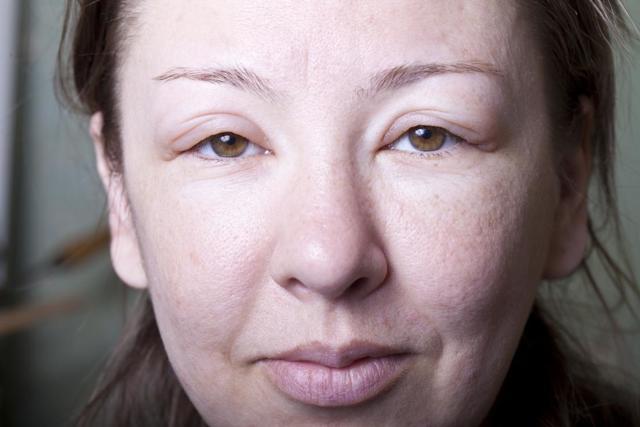 Отек Квинке: симптомы и способы оказания первой помощи