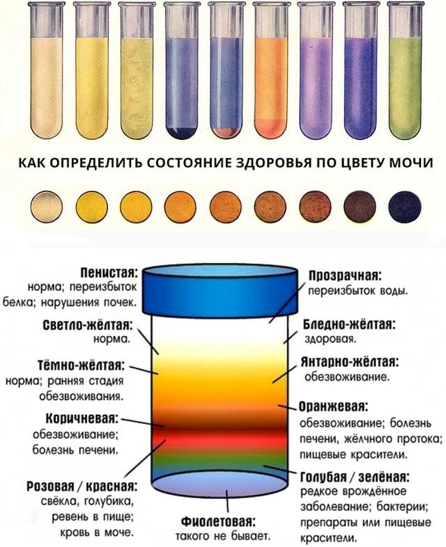 cветлая моча: причины, диагностика, особенности лечения