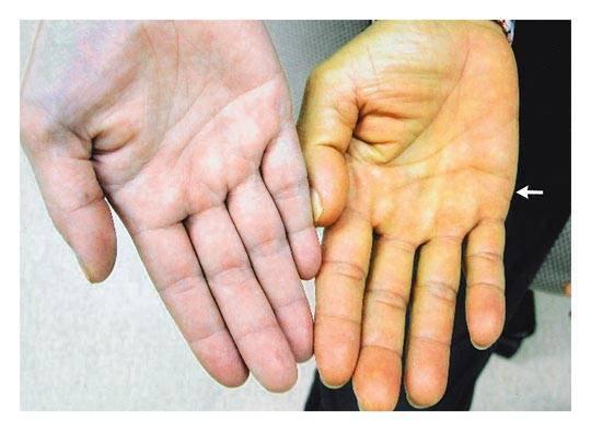 Желтуха: причины, признаки, диагностика