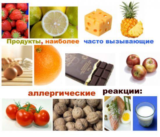 Лучшие народные средства в лечении диатеза и кожных воспалений