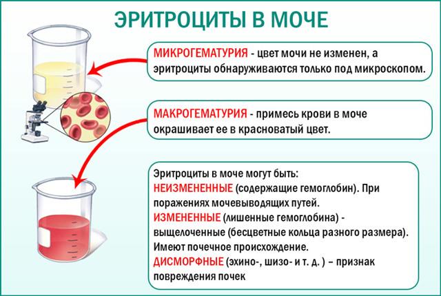 Эритроциты в моче при беременности: причины, норма, диагностика