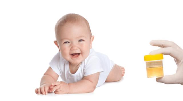 Повышены лейкоциты в моче у грудничка, норма у ребенка в год