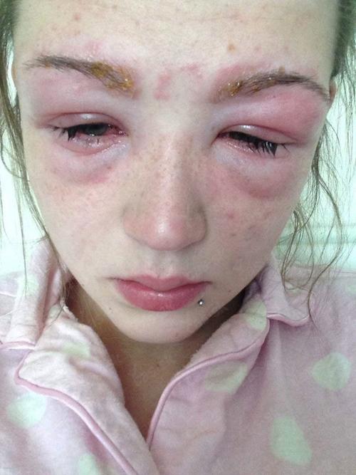 Аллергия на краску для волос: что делать, симптомы и лечение?