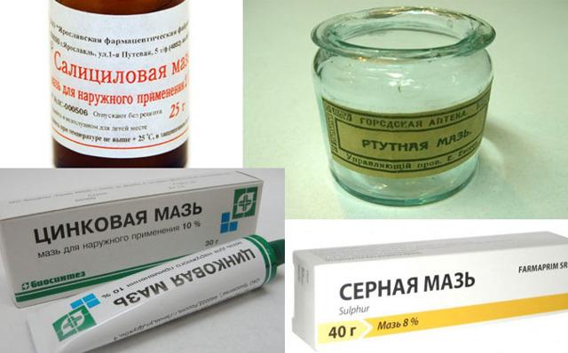 Основные и максимально эффективные методы лечения себорейной экземы: лучшие способы