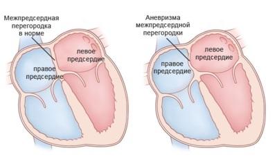 Аневризма межпредсердной перегородки сердца у новорожденных и взрослых: причины и лечение