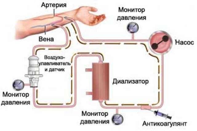Что такое диализ: общая информация и специфика процедуры