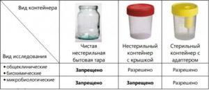 cколько мочи нужно для анализа: ОАМ, Нечипоренко, биохимический