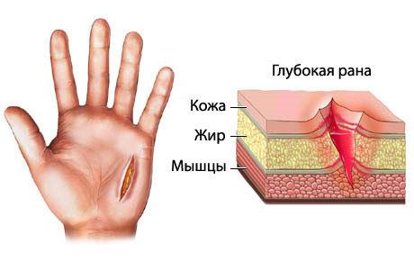 Эффективные методы остановки кровотечения