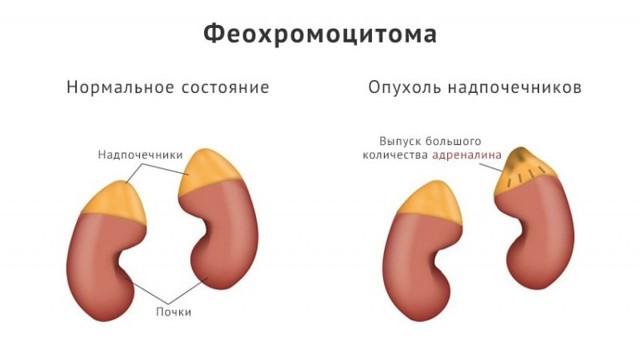 Полиурия: причины, симптомы, лечение обильного выделения мочи