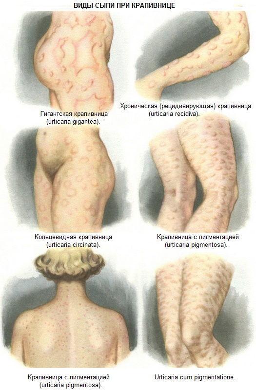 Симптомы аллергической крапивницы: причины и лечение