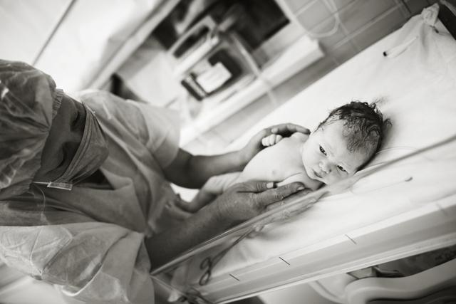 Водянка яичка у ребенка: фото, причины и последствия, лечение, операция, видео