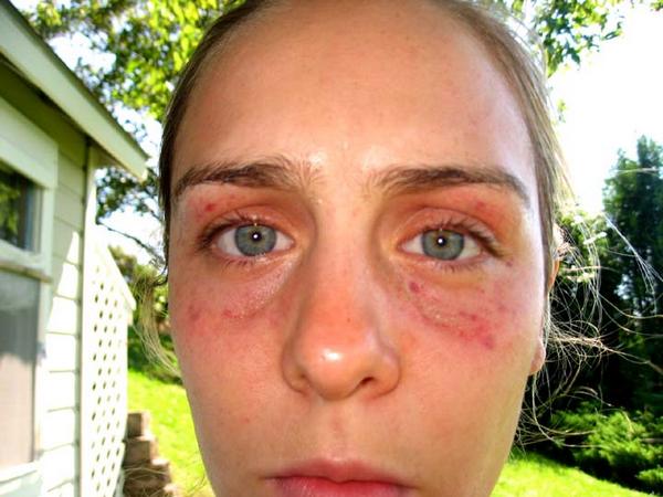 Коагулопатия: виды, причины, симптомы и лечение