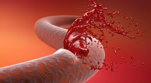 Виды внутренних кровотечений, их симптомы и возможные причины