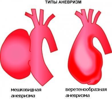 Аневризма брюшной аорты сердца: диагностика болезни, лечение и профилактика