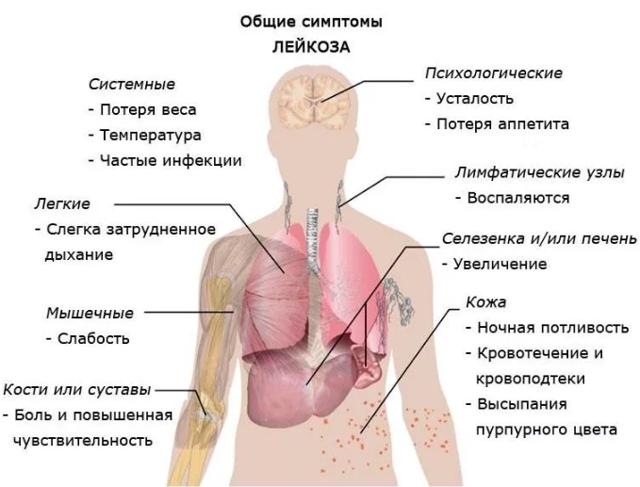 Острый миелобластный лейкоз: прогноз жизни, симптомы и лечение