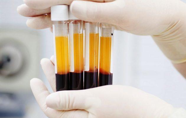 Тимоловая проба: что это, норма в крови, повышена, понижена