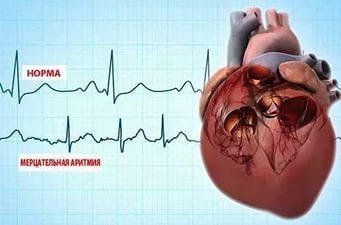 ТОП 13 лучших народных средств для лечения аритмии сердца