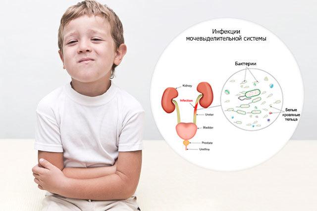 Эшерехия коли в моче: причины, симптоматика и методы лечения