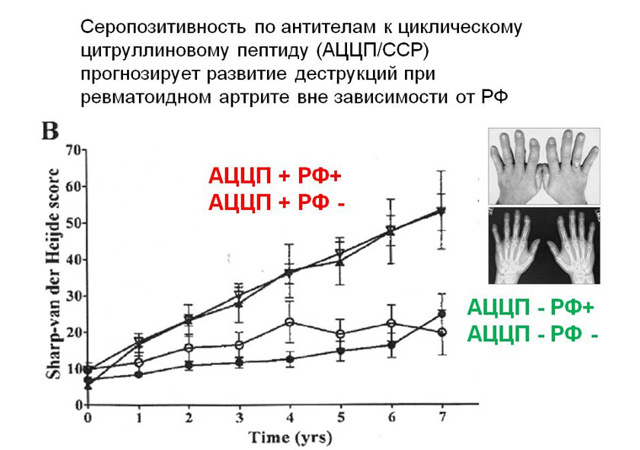 Анализ крови АЦЦП: расшифровка, показания, норма