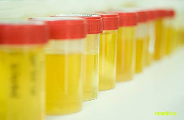 Эритроциты в моче повышены: причины у женщин, гинекологические болезни