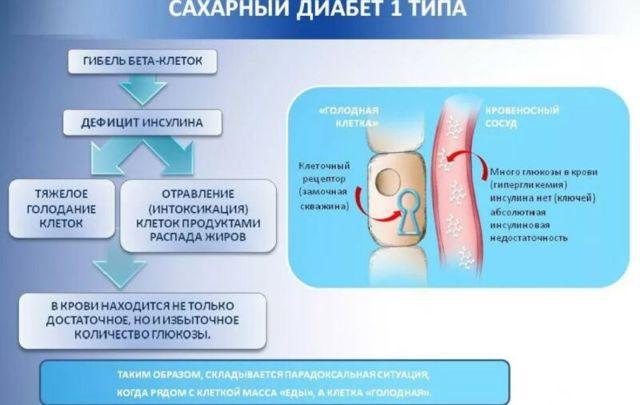 Первые признаки сахарного диабета: процесс развития заболевания