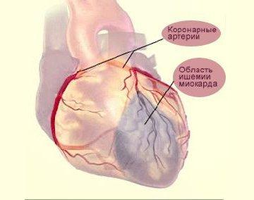 Инфаркт миокарда ЭКГ: расшифровка с фото, признаки и локализация