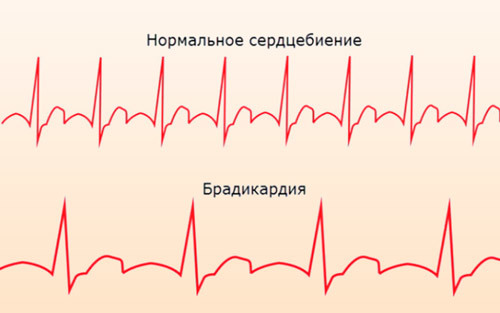 Брадикардия сердца: характерные симптомы и методы лечения