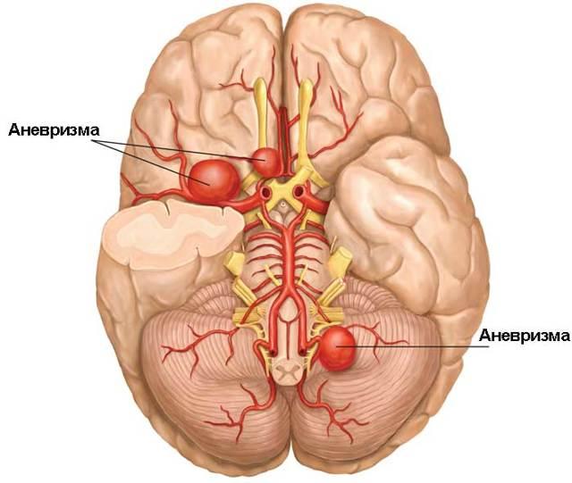 Аневризма сосудов головного мозга: симптомы, лечение и признаки