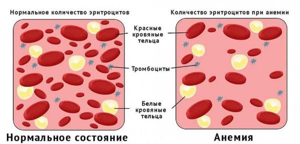 Гематокрит: какой уровень считается нормой? Таблица по возрасту