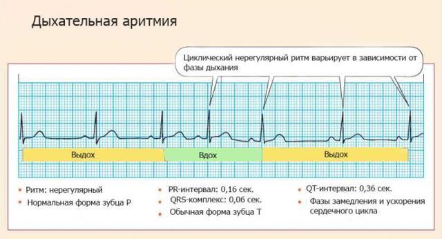 Дыхательная аритмия у детей и взрослых: причины, симптомы и меры профилактики