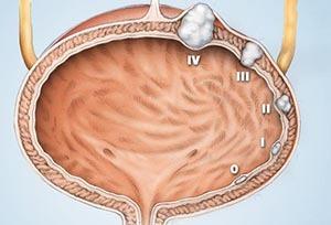 Рак мочевого пузыря у мужчин: симптомы и лечение