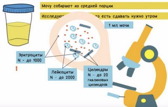 Анализ мочи по Нечипоренко: методика, показатели, сбор, расшифровка