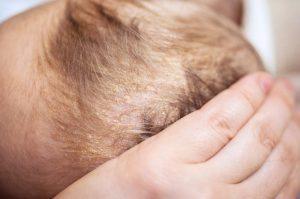 Себорейный дерматит у грудничка: причины появления и методы лечения