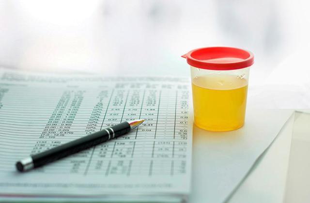 Уробилиноген в моче, норма билирубина в анализе у ребенка
