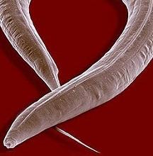 Энтеробиоз: симптомы и лечение у взрослых, яйца остриц в кале