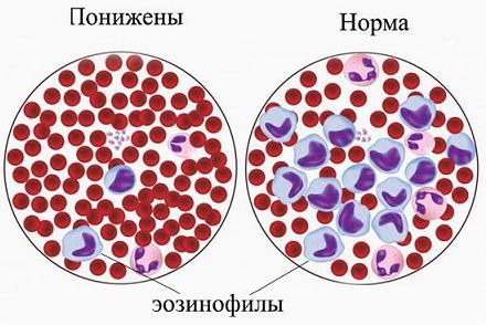 Эозинофилы: нормы у взрослых и детей, причины почему повышени или понижены в анализе крови