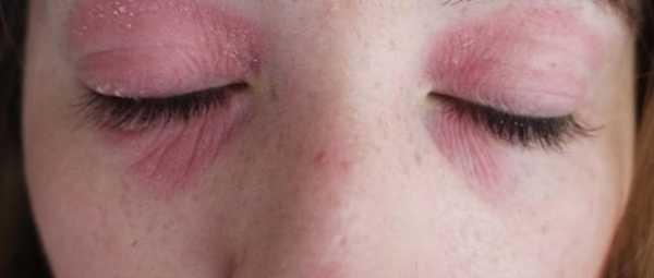 Аллергия на тушь для ресниц: симптомы и методы лечения