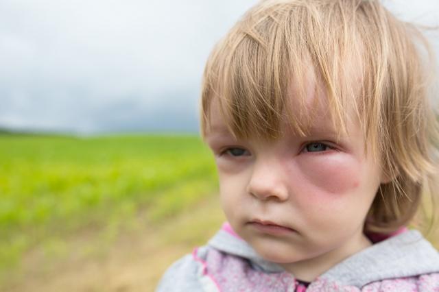 Чем лечить аллергию на лице если появились красные пятна?