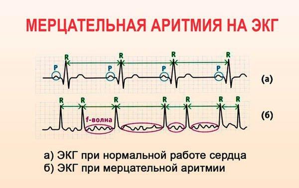 Мерцательная аритмия на ЭКГ: основные признаки и виды диагностики