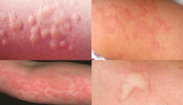 Признаки аллергии у взрослых: фото, симптомы и причины